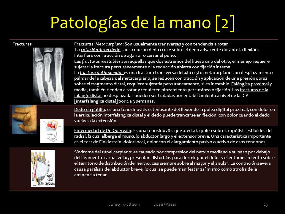 Patologías de la mano [2]
